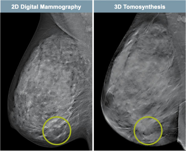 2D Digital Mammography and 3D Tomosynthesis